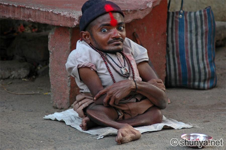 deformed people - photo #17